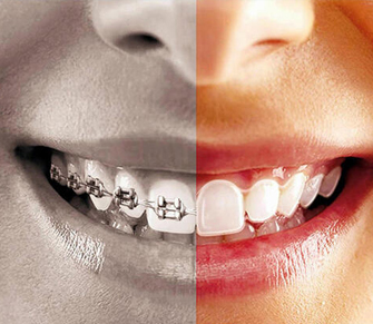 Ortodonti (Diş Teli)