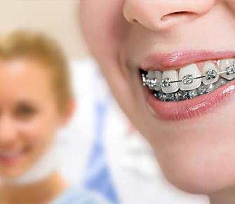Sakarya'da Ortodonti Tedavisi